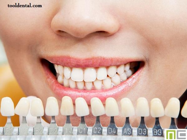 کامپوزیت ونیر دندان امریکایی