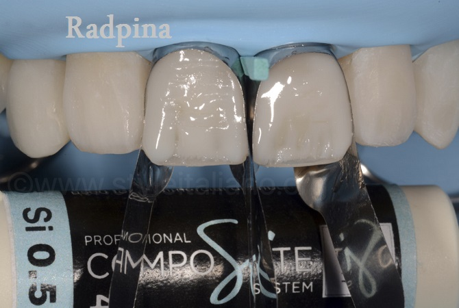 قیمت مواد کامپوزیت دندان
