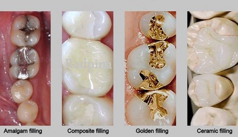 بهترین مواد پر کننده دندان
