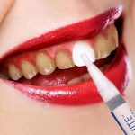 مواد جرمگیری دندانپزشکی