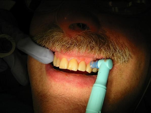 فروش پولیش دندانپزشکی