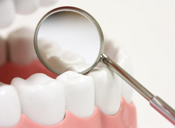 بهترین مواد دندانپزشکی